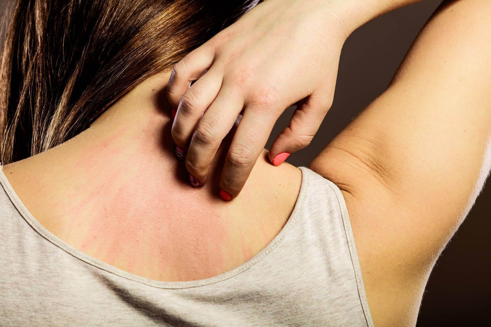 Аллергия, психосоматика, причины — средство новейшего времени!