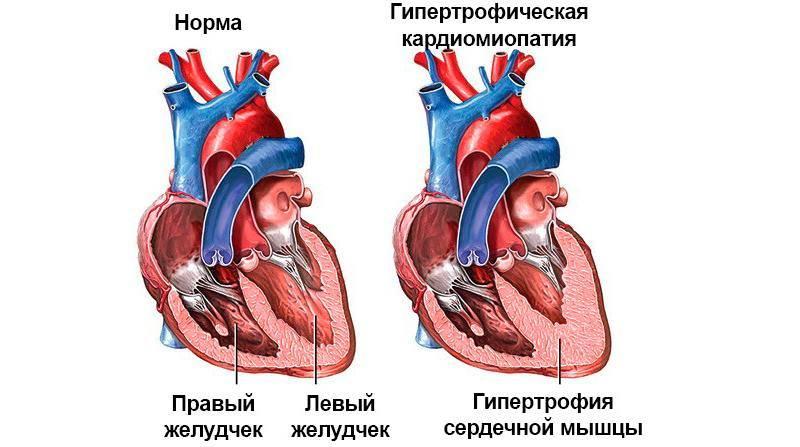 Гипертрофическая кардиомиопатия у кошек лечение