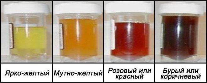 Опасность появления мочи цвета чая