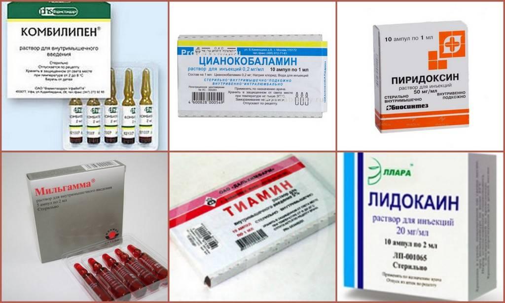 Лечение артрита медикаментами, таблетками: обзор популярных лекарств
