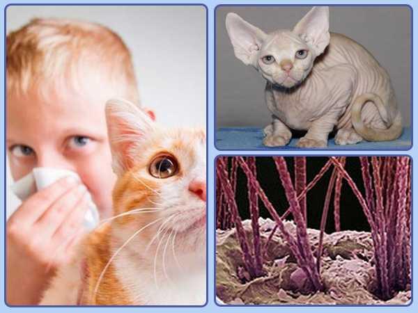 Аллергия на кошек: симптомы, диагностика и лечение