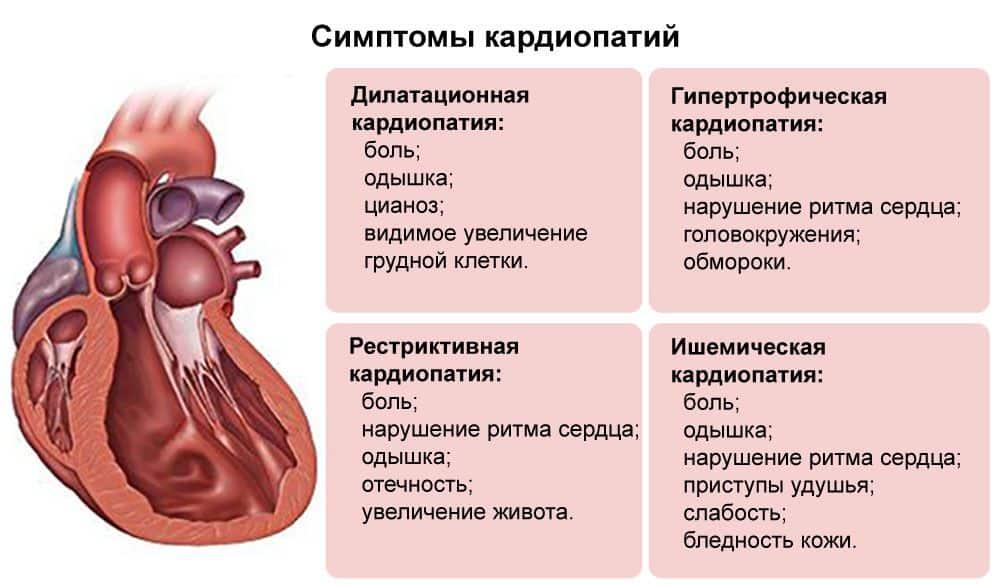 Как предотвратить и обезвредить гипертрофическую кардиомиопатию у кошек?
