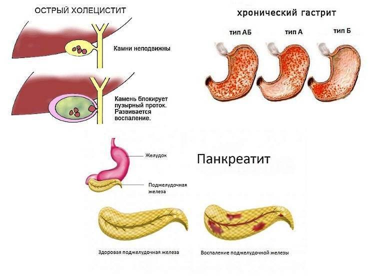 Острый панкреатит и панкреонекроз. симптомы, проявление, лечение