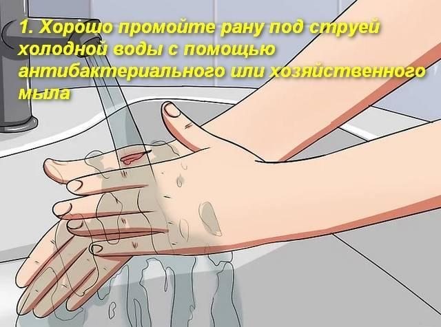 Как снять опухоль руки после укуса кошки