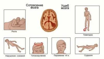 Сотрясение мозга у кошки. 8 вероятных симптомов
