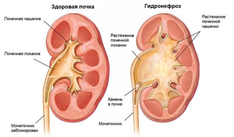 Гидронефроз — почечная недостаточность | университетская клиника