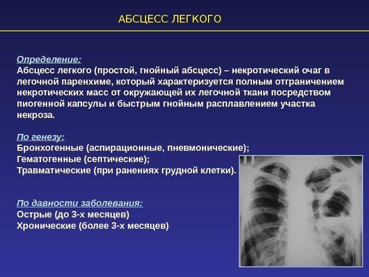 Симптомы и методы лечения пневмонии у кошек