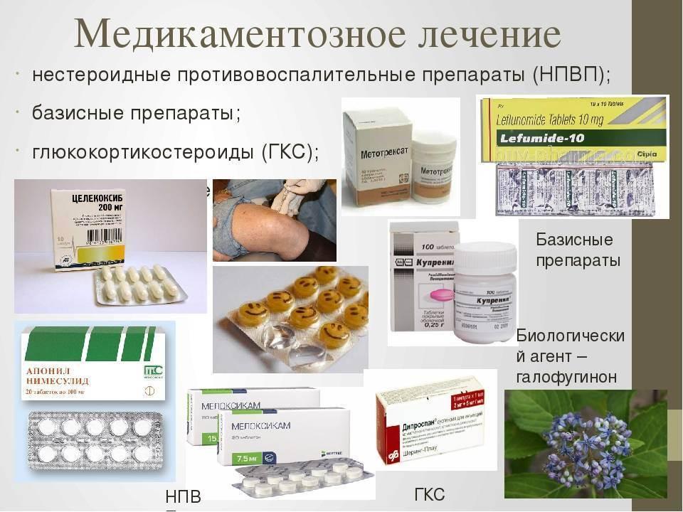 Лечение артрита коленного сустава: лекарства в форме таблеток, мази и другие препараты для снятия воспаления
