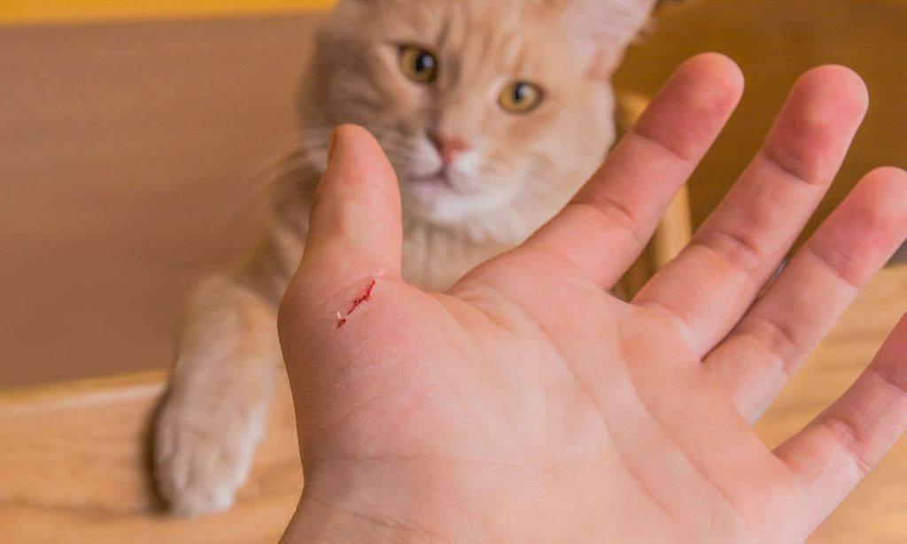Антибиотики при укусе кошки — топ 5 препаратов при укусе, инструкция по применению