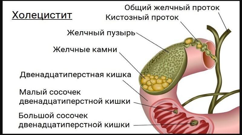 Холецистит: причины, симптомы, лечение