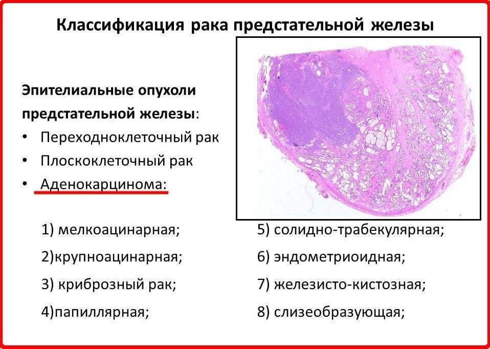 Рак у кошек: общие сведения о заболевании, разновидности опухолей, симптомы, лечение