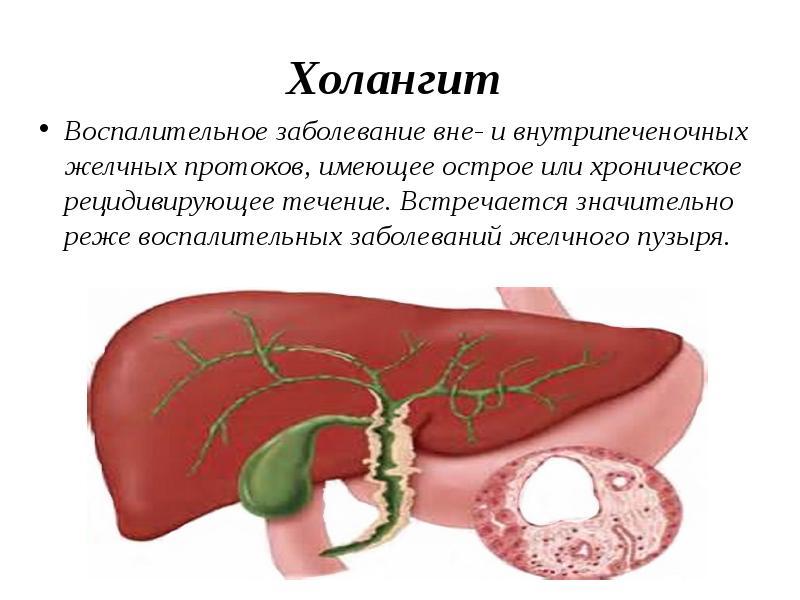 Холестаз: описание синдрома, внутрипеченочная форма, застой в желчном пузыре, зуд как основной симптом, признаки на узи, лечение, препараты, диета