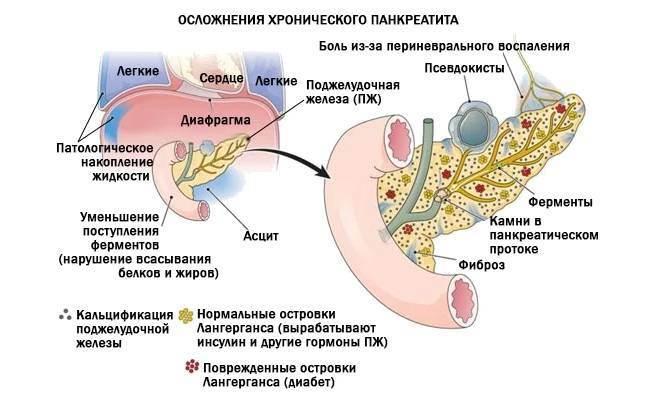 Панкреонекроз поджелудочной железы: причины, симптомы и опасность болезни | mfarma.ru