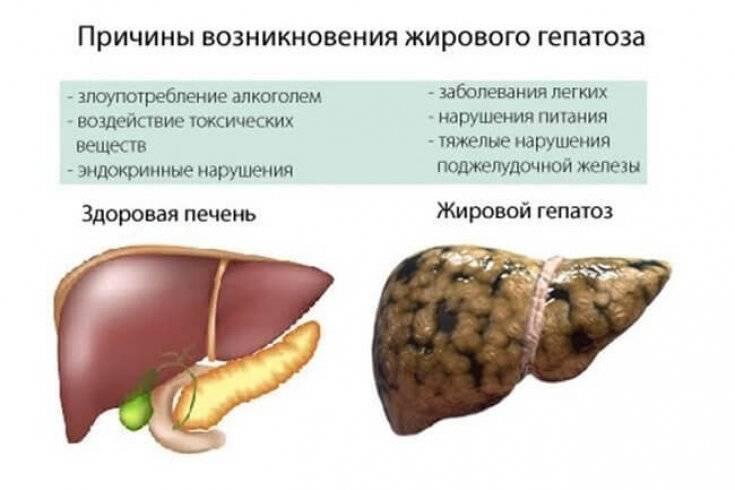 Что такое гепатоз печени, как его предотвратить и как лечить у кошки