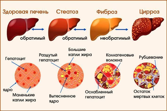 Вирусный гепатит у кошек симптомы и лечение