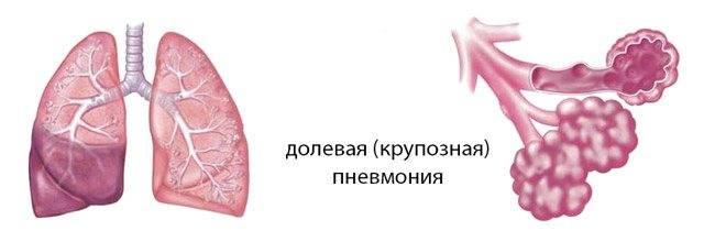 Пневмония у кошек: симптомы и лечение