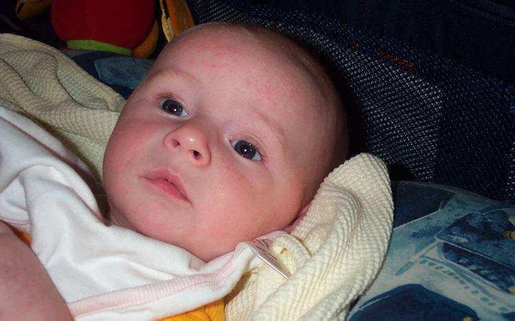 Аллергия на кошек у ребёнка — как помочь малышу?