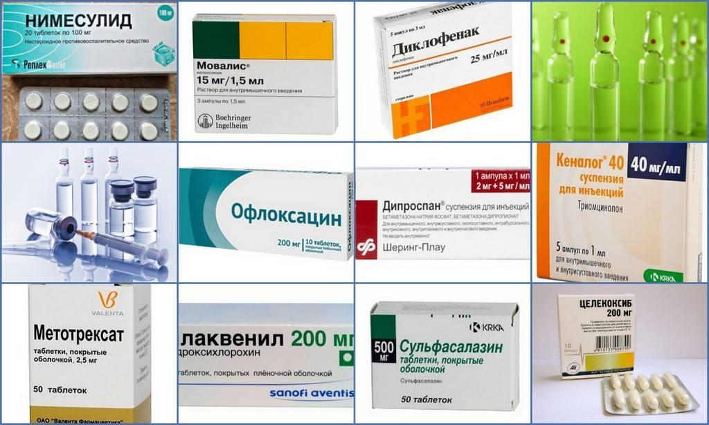 Рейтинг лекарств для лечения артрита коленного сустава: список названий