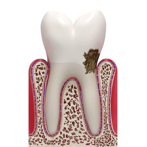 Зубной камень у кошек: лечение