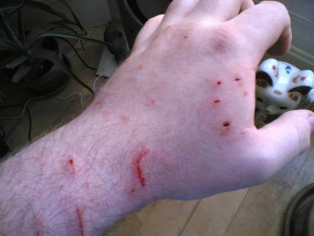 Можно ли заразиться бешенством, если поцарапала или укусила кошка: отвечаем подробно