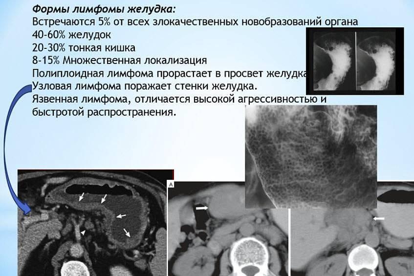 Лимфома почек у кошек лечение и прогноз - муркин дом