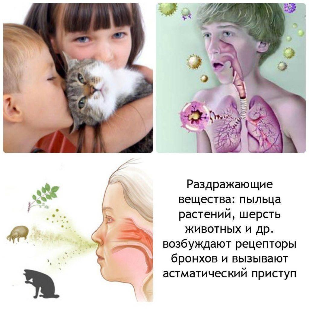 Что делать при аллергии на кошек: симптомы, лечение, фото