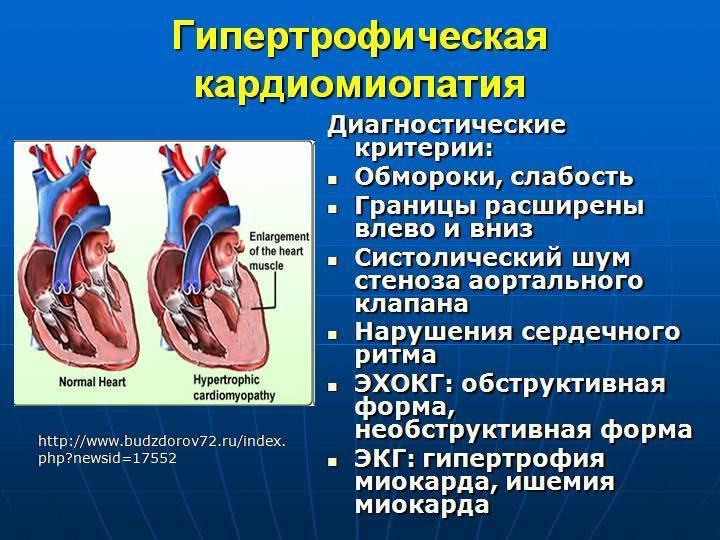 Гкмп у кошек симптомы - прогноз у кошек с гипертрофической кардиомиопатией - статья