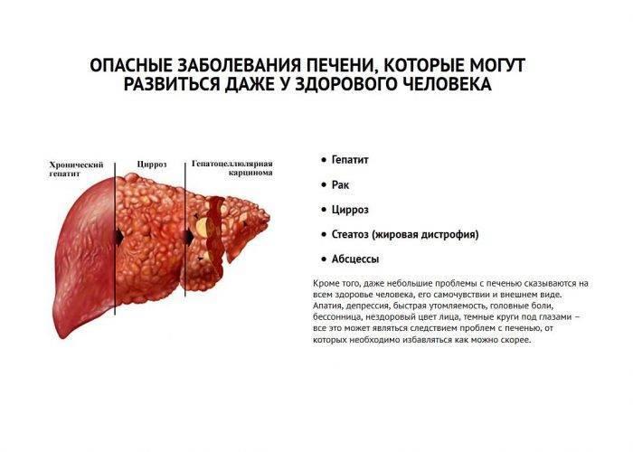Панкреатит у кошек (острый и хронический): симптомы и лечение, прогноз, питание в домашних условиях