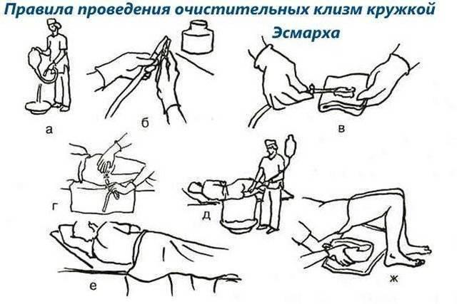 Клизма кошке при запоре: подготовка, применение