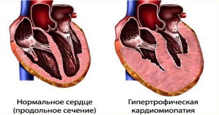 Гипертрофическая кардиомиопатия у кошек: причины и лечение