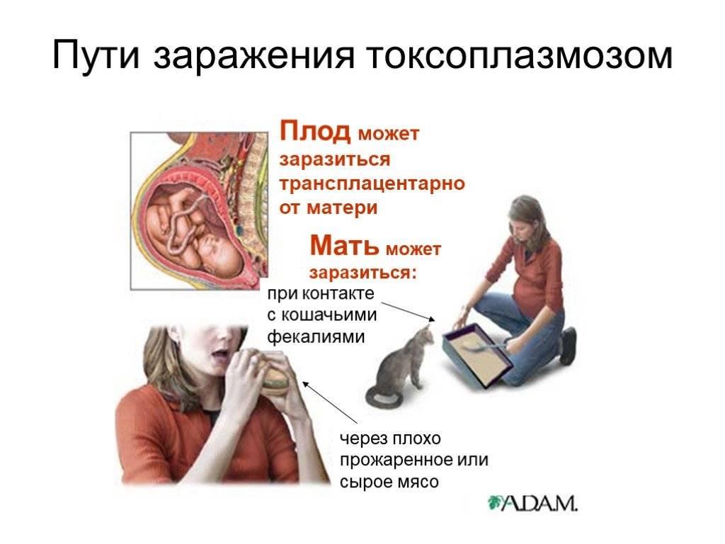 Как можно заразиться токсоплазмозом?