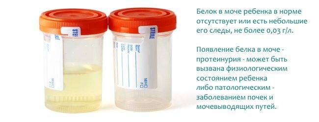 Струвиты в моче у кошки или кота   как лечить, лечение