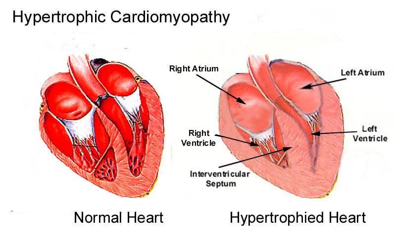 Гипертрофическая кардиомиопатия у кошек: диагноз, симптомы, прогноз, лечение