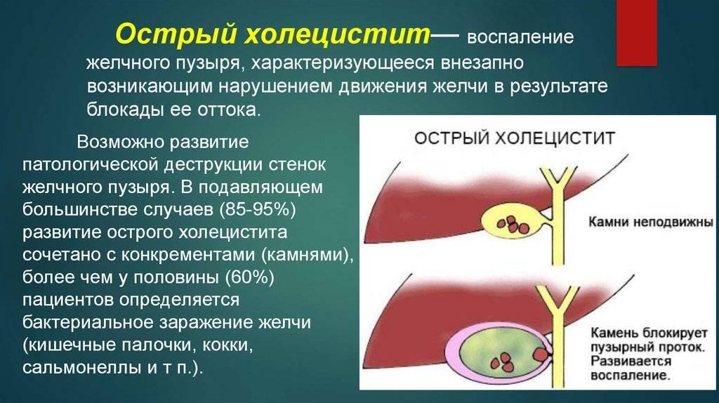 Холецистит у кошки лечение - муркин дом