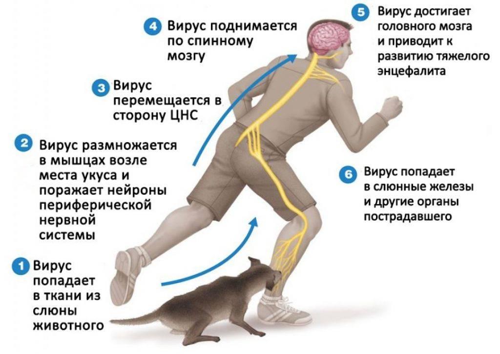 Симптомы бешенства у человека после укуса кота лечение в домашних условиях