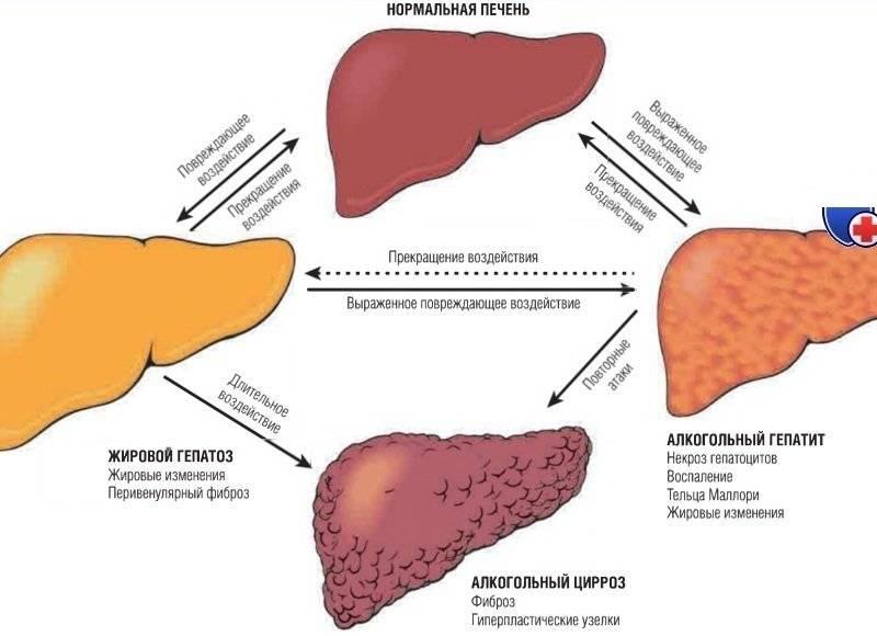 Лечение болезней печени у кошки симптомы и признаки: цирроз, рак, жировая дистрофия, печёночная недостаточность
