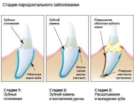 Признаки, причины и лечение зубного камня у кошек