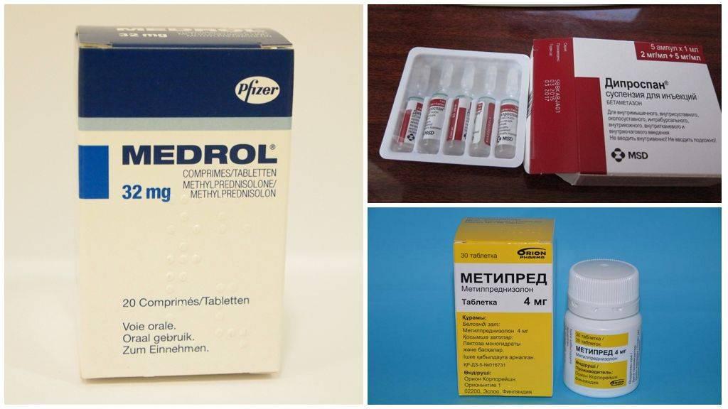 Какими препаратами можно вылечить артрит: основные группы медикаментов, тактика лечения