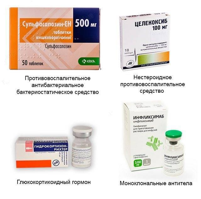 Лекарства для лечения артрита коленного сустава: список лучших
