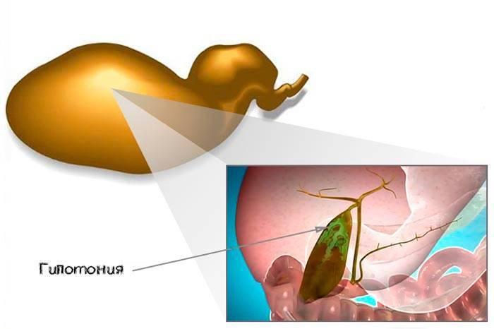 Холангит – симптомы и лечение